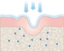 Hyaluronsäure schützt und befeuchtet
